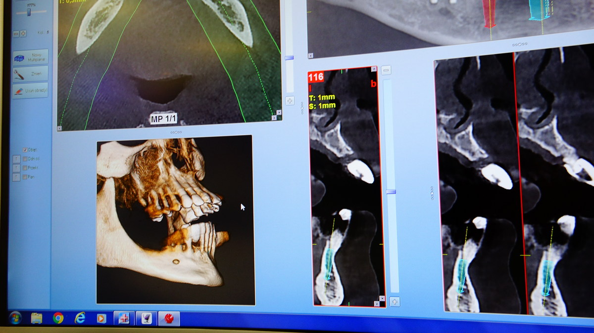 preludium-implantologii-siii-e2-030