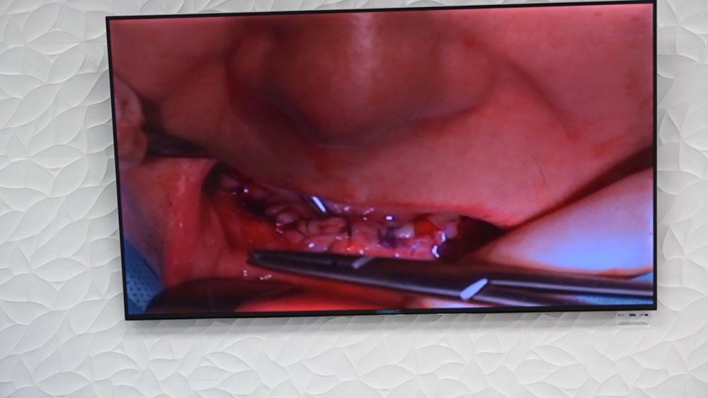 practiculum-implantologii-01-s7-027