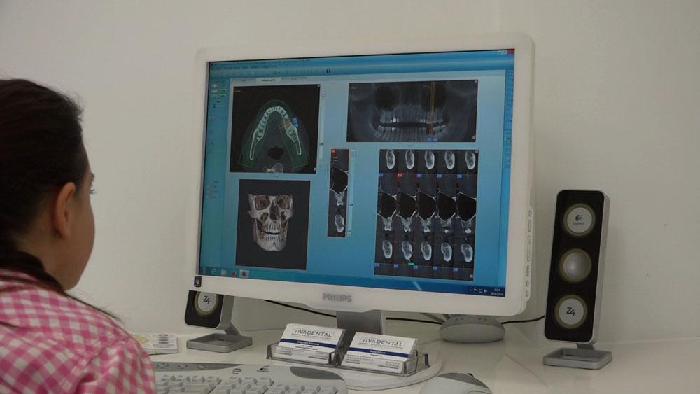 practiculum-implantologii-01-s7-057