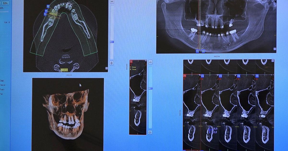 practiculum-implantologii-01-egzamin-030