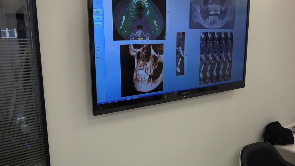 practiculum-implantologii-03-s4-055
