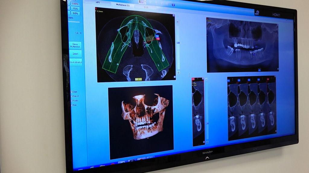 practiculum-implantologii-03-s8-016