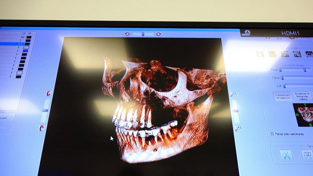 practiculum-implantologii-03-s8-018