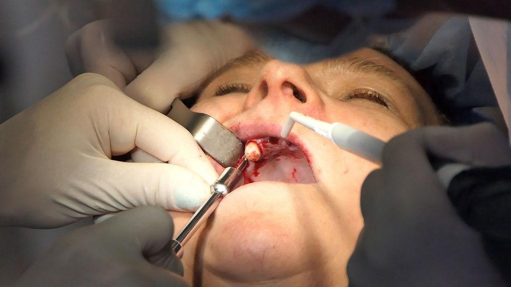 practiculum-implantologii-03-egzamin-061
