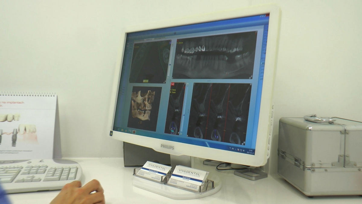 practiculum-implantologii-siv-s3-108