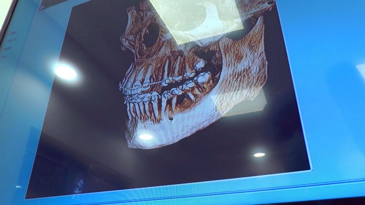 practiculum-implantologii-siv-s3-121