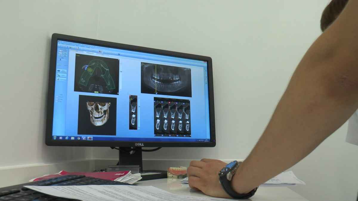 practiculum-implantologii-04-s4-279
