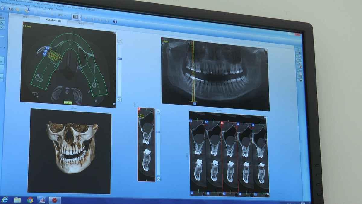 practiculum-implantologii-04-s4-280