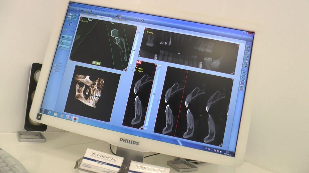practiculum-implantologii-04-s5-037