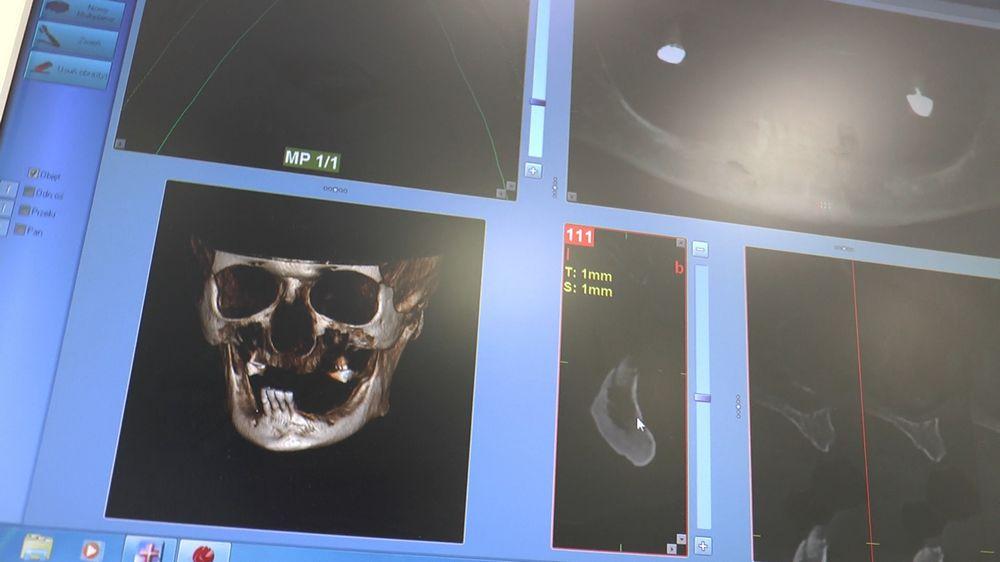 practiculum-implantologii-04-s5-069