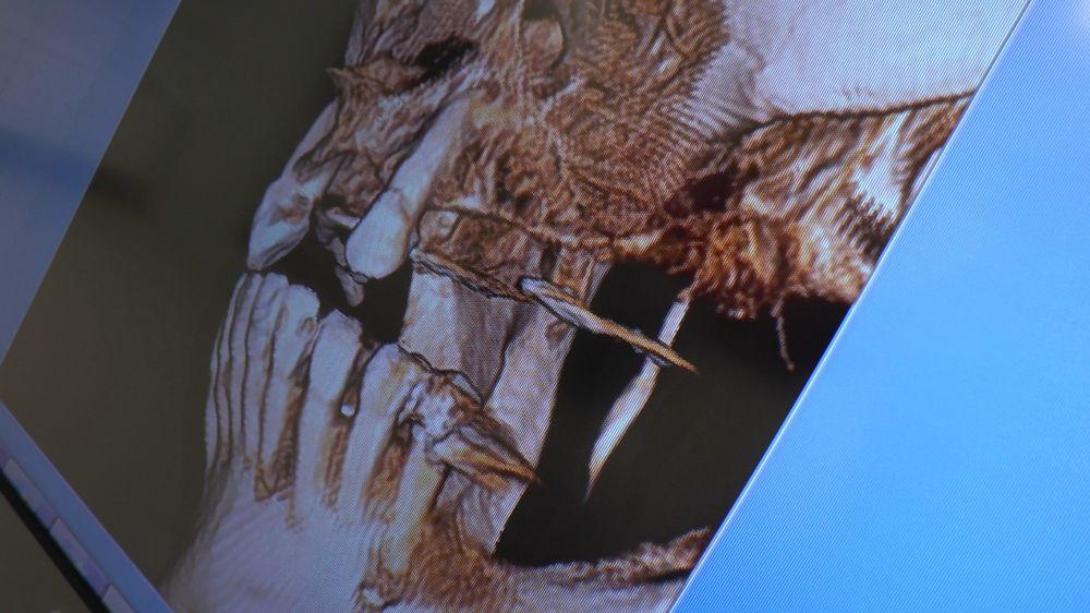 practiculum-implantologii-04-s5-093