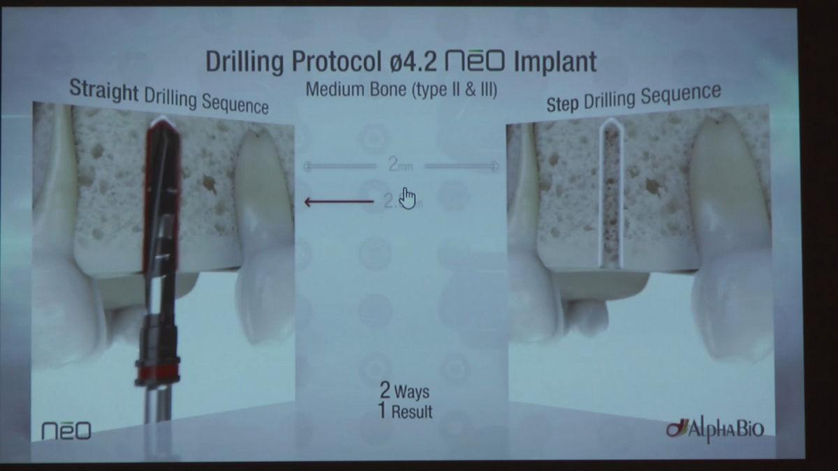 practiculum-implantologii-siv-s6-warsztaty-033