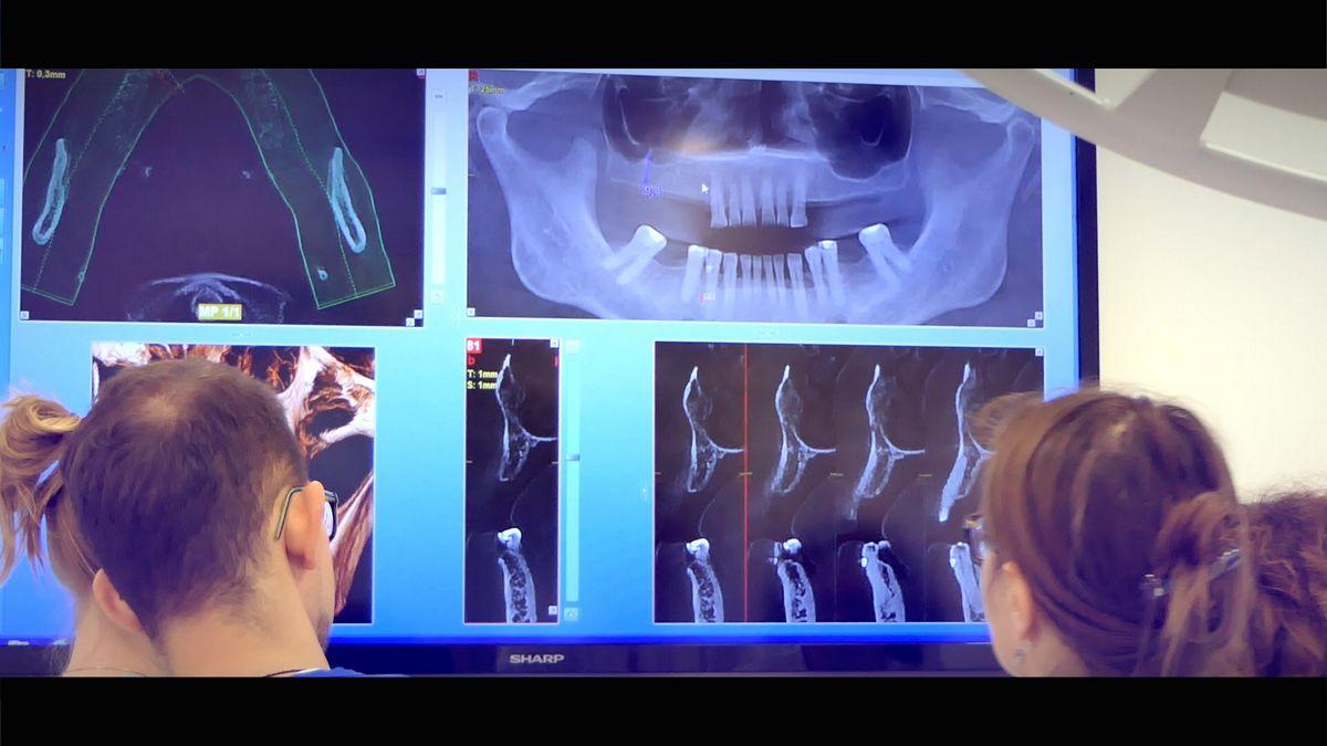 practiculum-implantologii-s4-s8-407