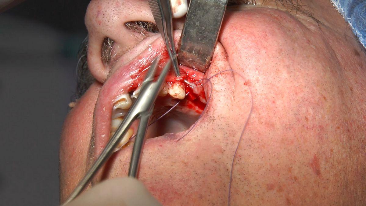 practiculum-implantologii-s4-s8-466