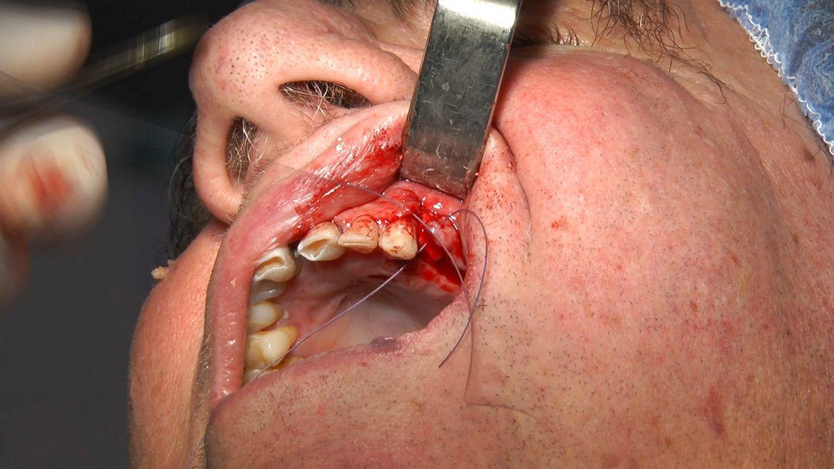 practiculum-implantologii-s4-s8-467