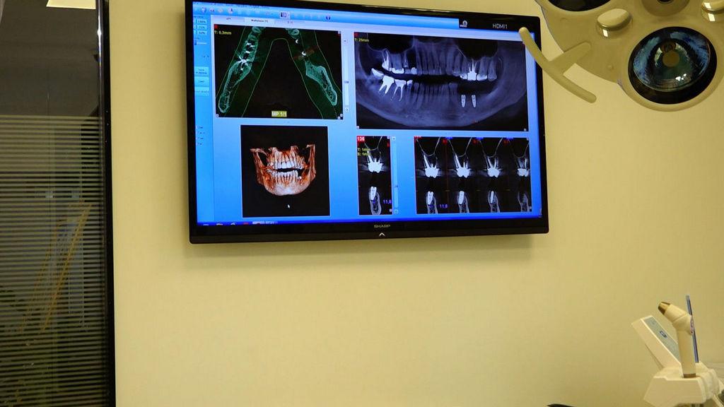 practiculum-implantologii-05-s1b-047