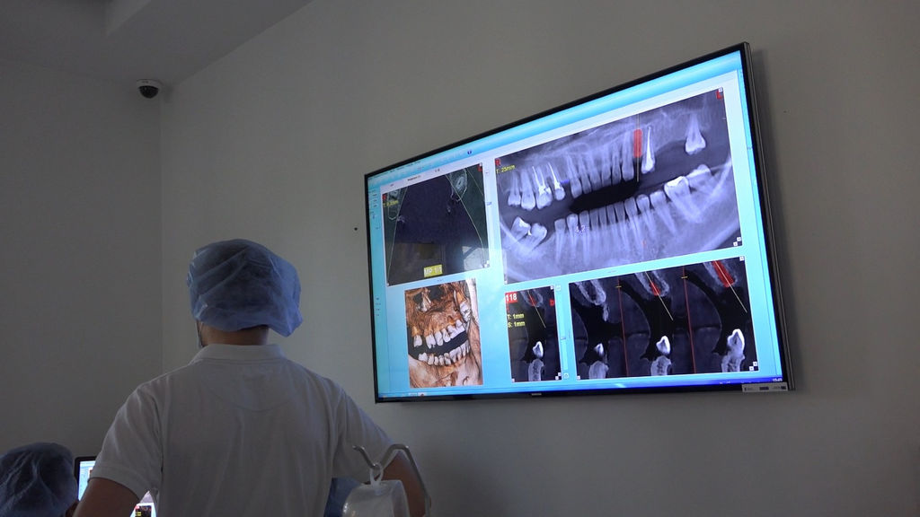 practiculum-implantologii-05-s5a-042