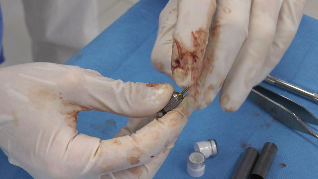 practiculum-implantologii-05-s6b-366