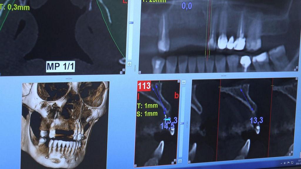 practiculum-implantologii-05-s6b-369