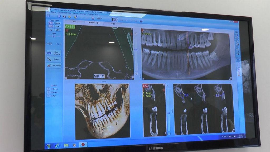 practiculum-implantologii-05-s6b-627