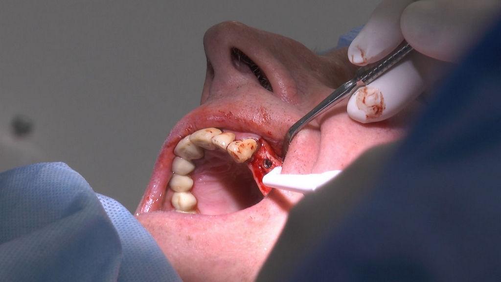 practiculum-implantologii-05-s6b-884