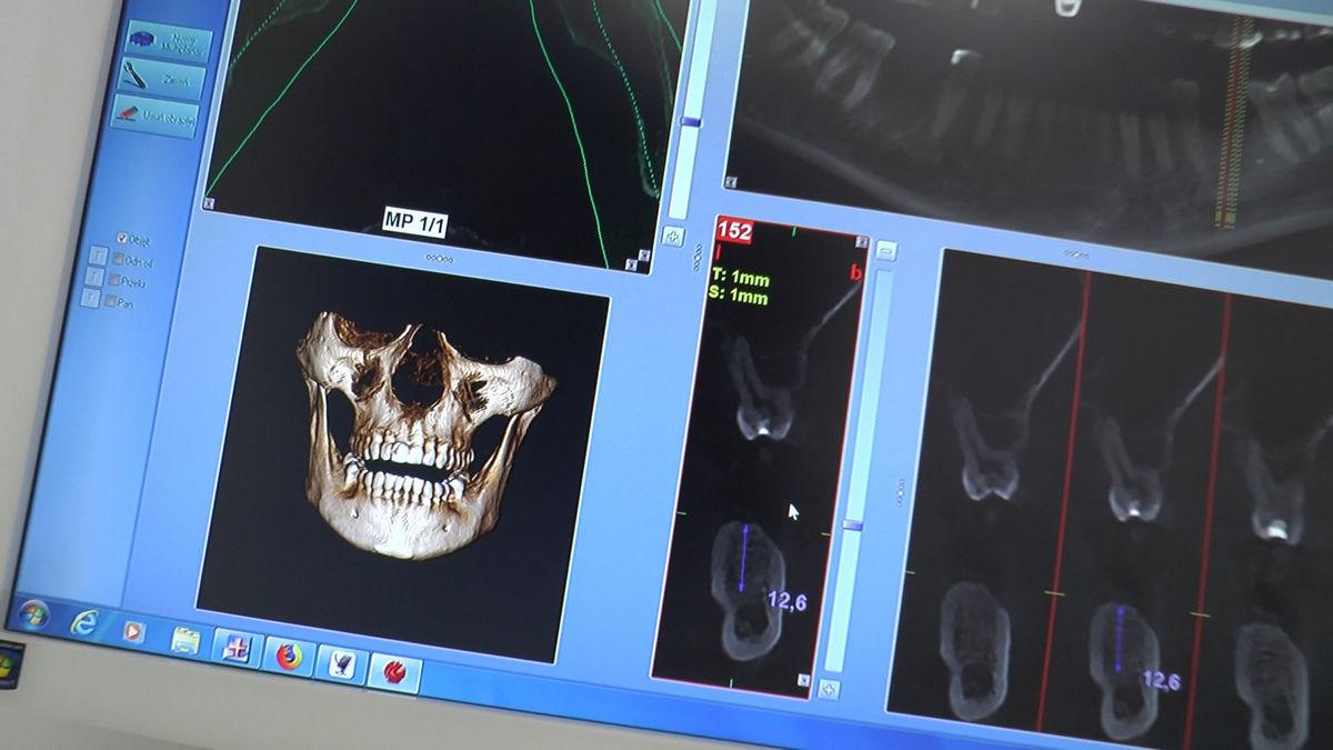 practiculum-implantologii-svb-s7-d1-053