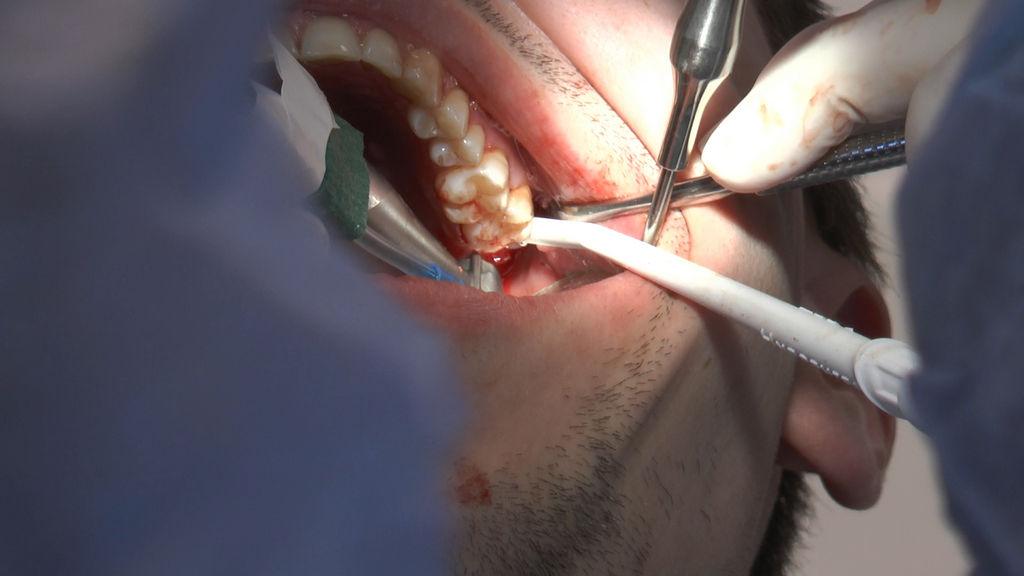 practiculum-implantologii-05-s7a-d2-357