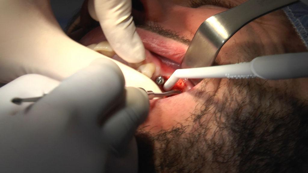 practiculum-implantologii-05-s7a-d2-400