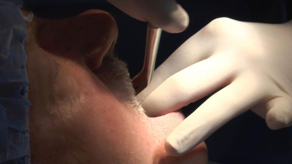 practiculum-implantologii-05-s7a-d1-006