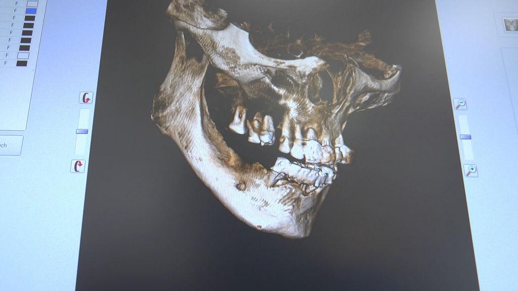 practiculum-implantologii-05-s7a-d1-008