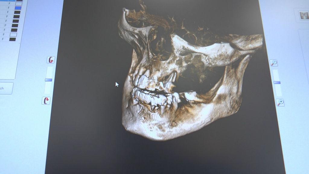 practiculum-implantologii-05-s7a-d1-009