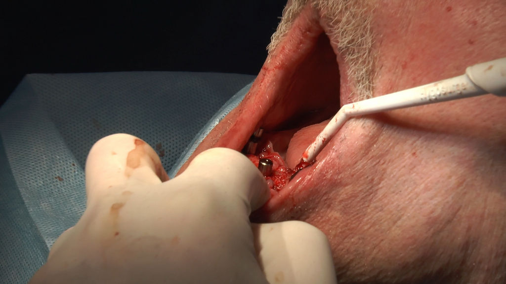 practiculum-implantologii-05-s7a-d1-152