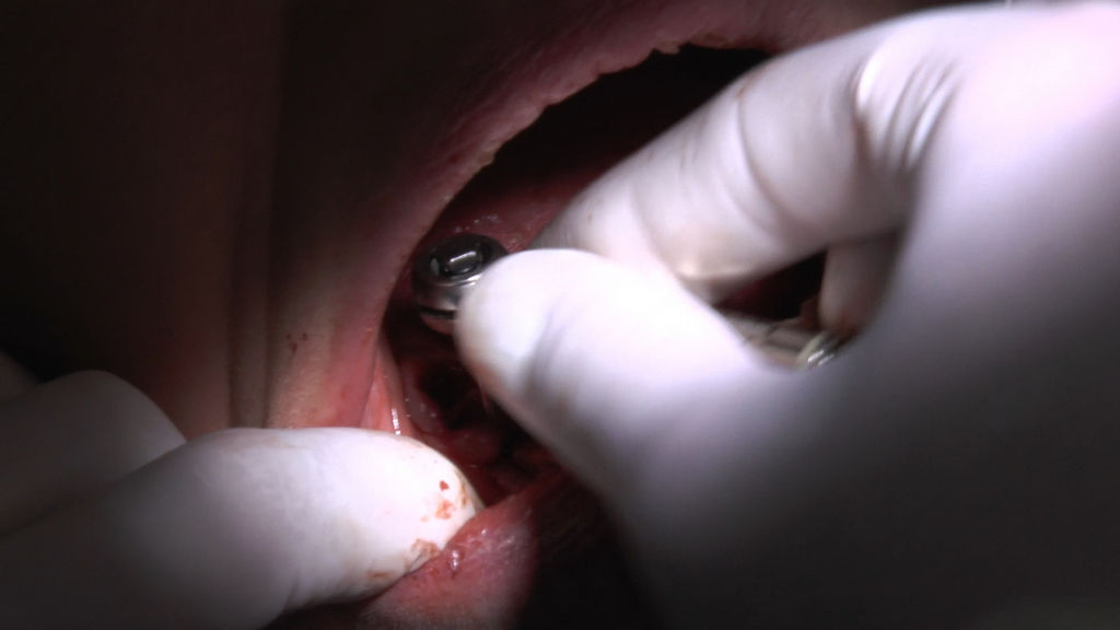 practiculum-implantologii-05-s7a-d1-164