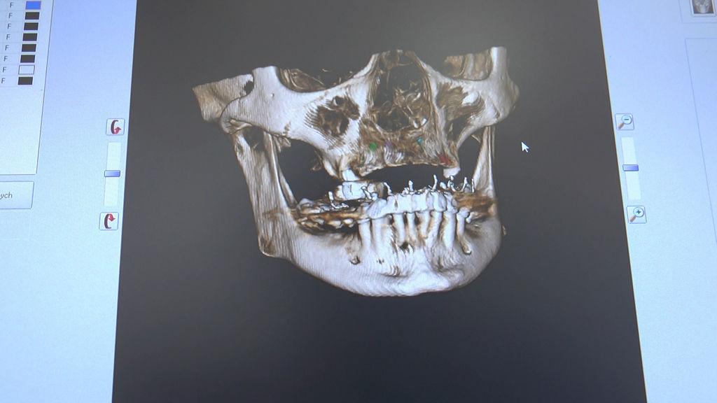 practiculum-implantologii-05-s7a-d1-181