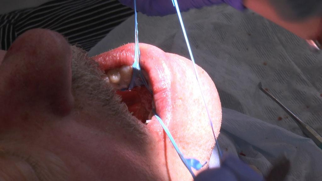practiculum-implantologii-05-s7a-d1-191