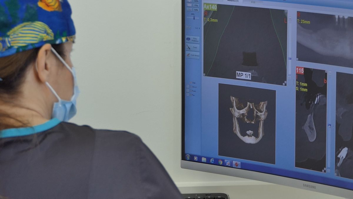 practiculum-implantologii-sva-s8-007