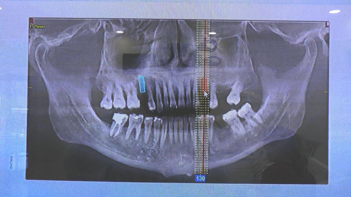 practiculum-implantologii-sva-s8-012