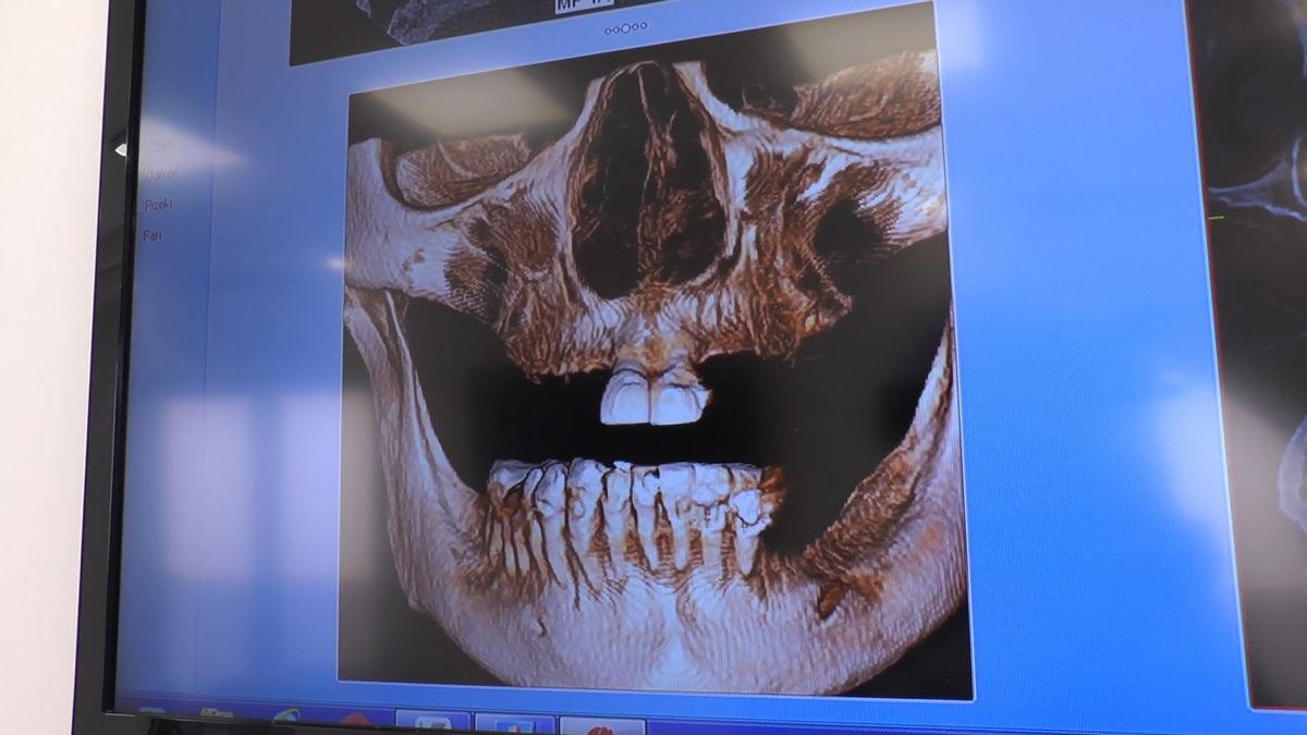 practiculum-implantologii-sva-s8-031