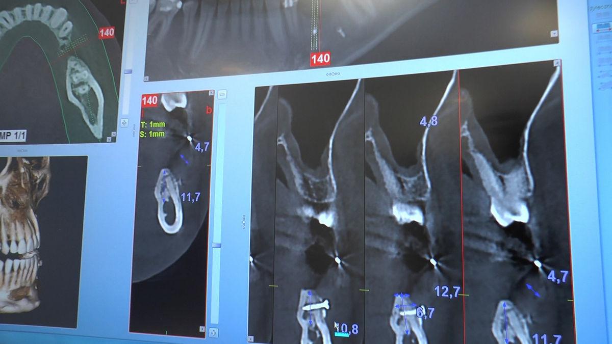 practiculum-implantologii-svb-s8-p4-214
