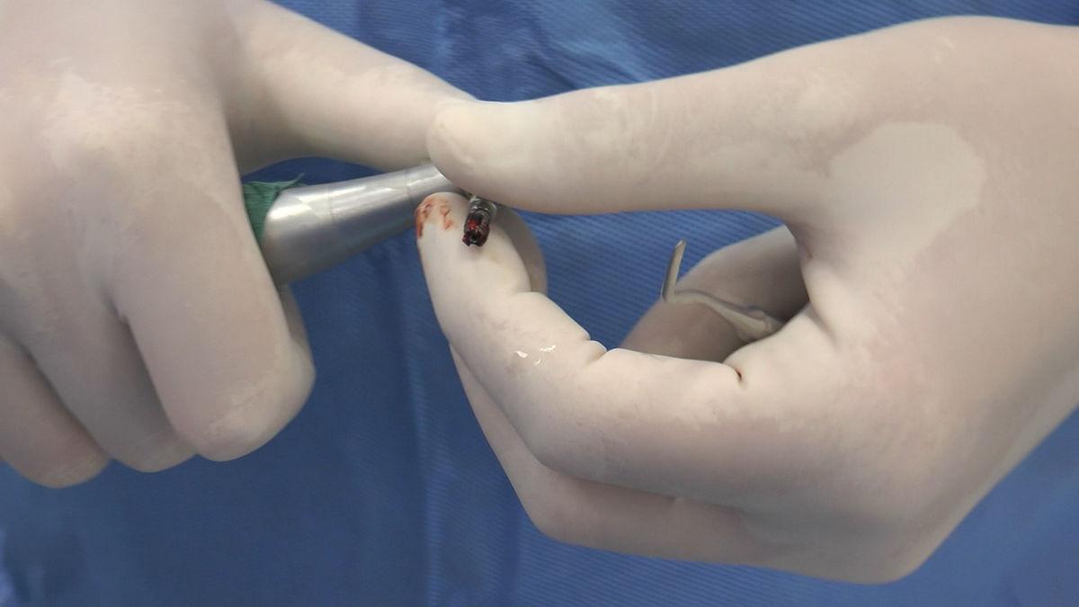 practiculum-implantologii-svb-s8-p4-227