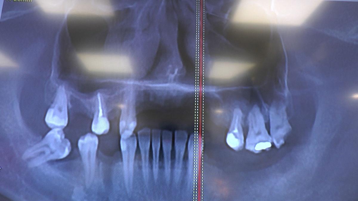 practiculum-implantologii-svb-s8-p4-281
