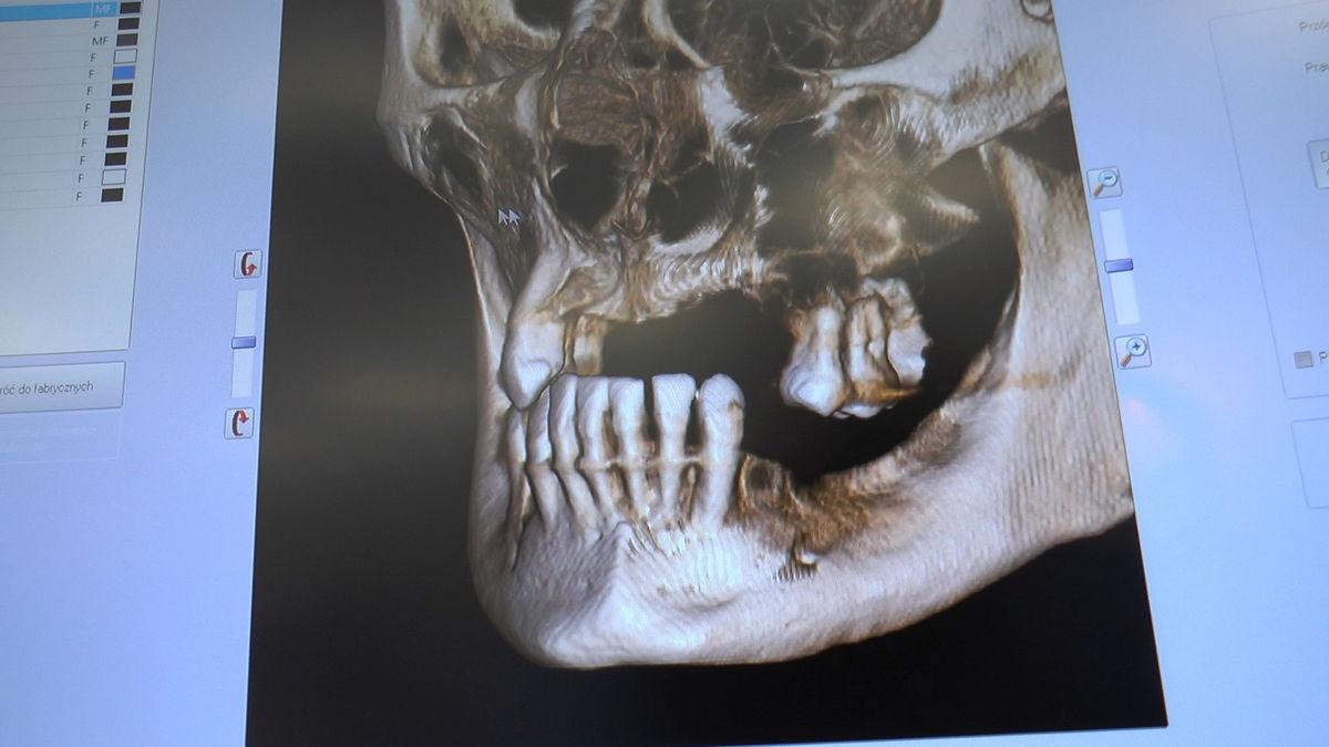 practiculum-implantologii-svb-s8-p4-282