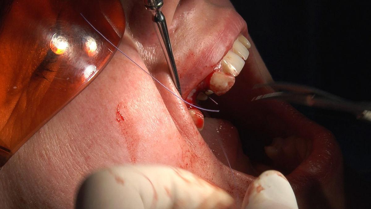 practiculum-implantologii-svb-s8-p3-130