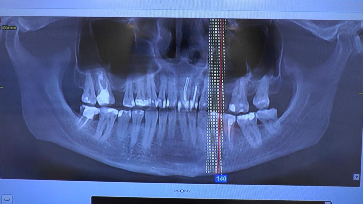 practiculum-implantologii-svb-s8-p3-149