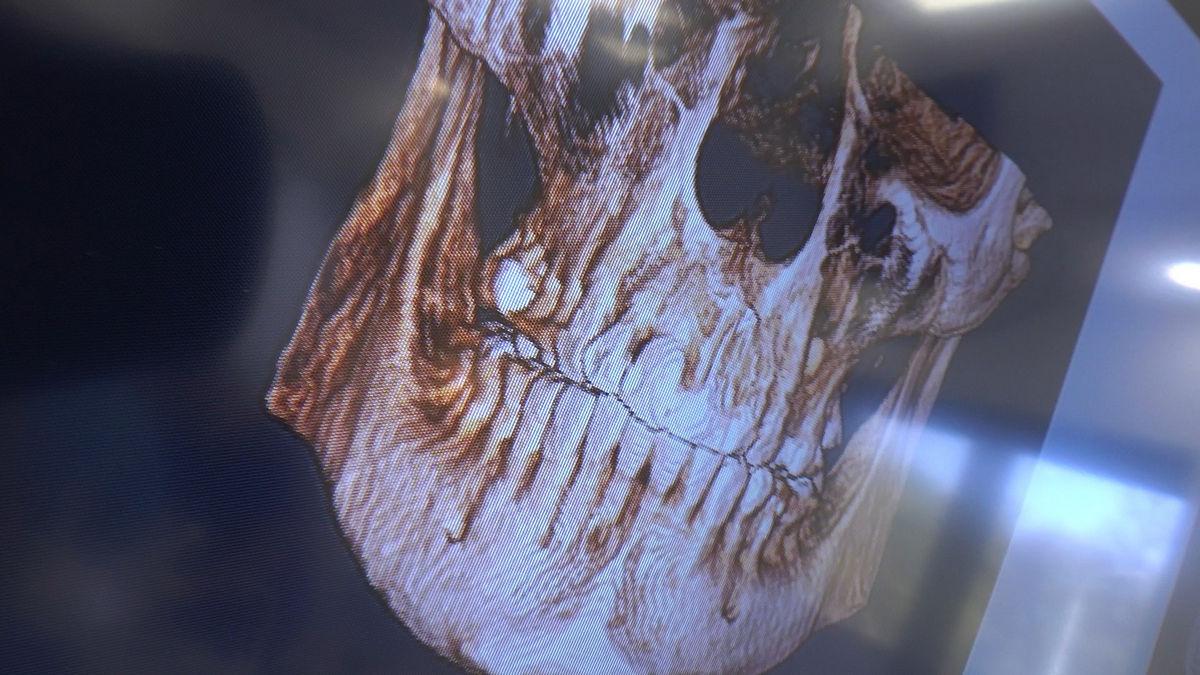 practiculum-implantologii-svb-s8-p3-150