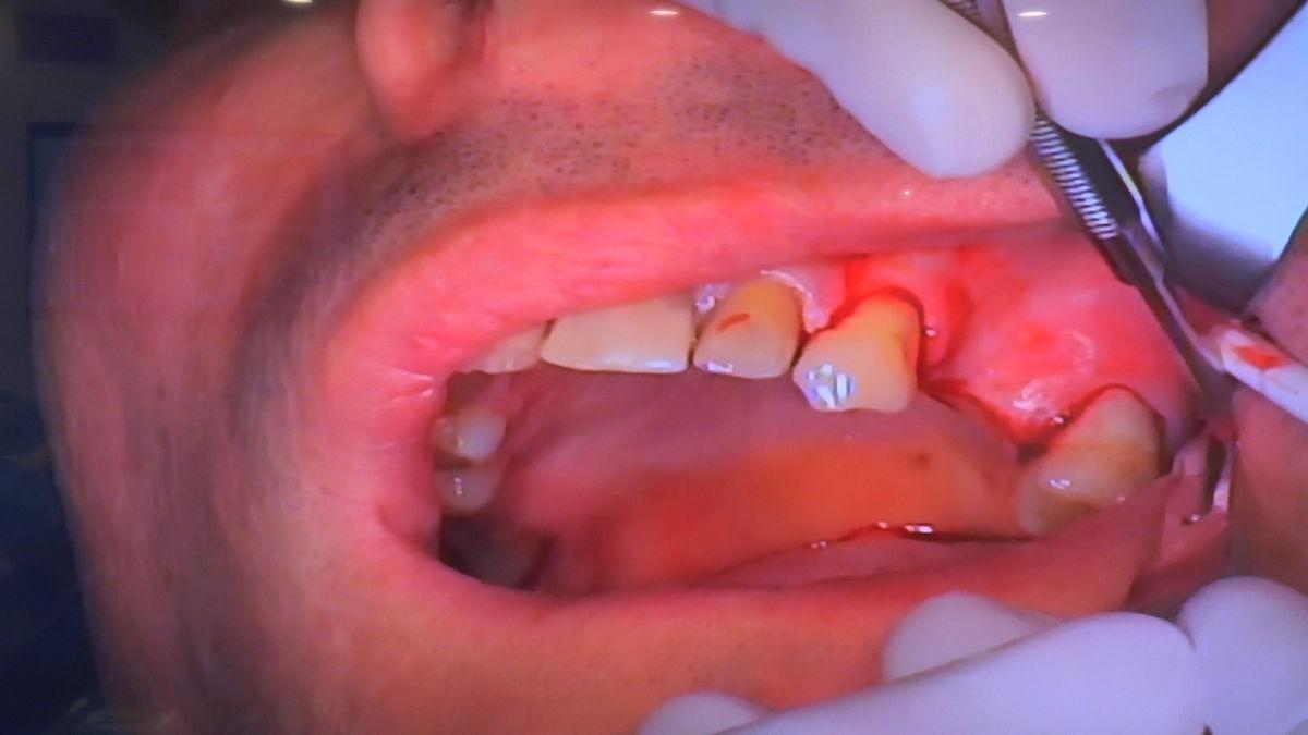 practiculum-implantologii-svb-s8-p3-166