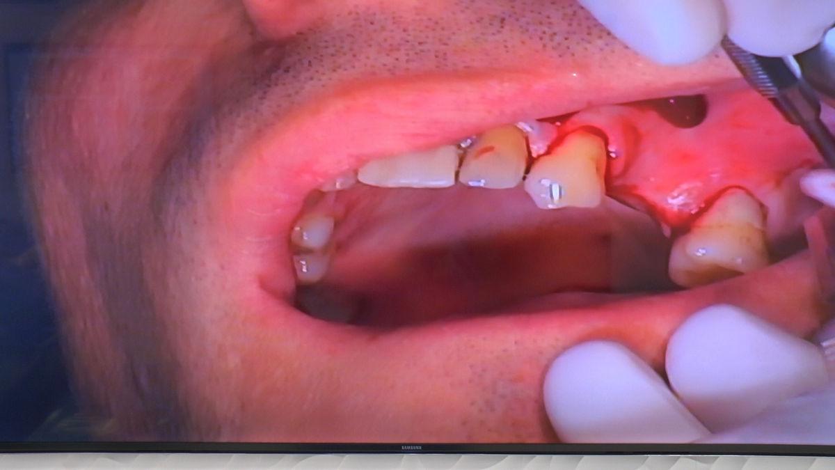 practiculum-implantologii-svb-s8-p3-167