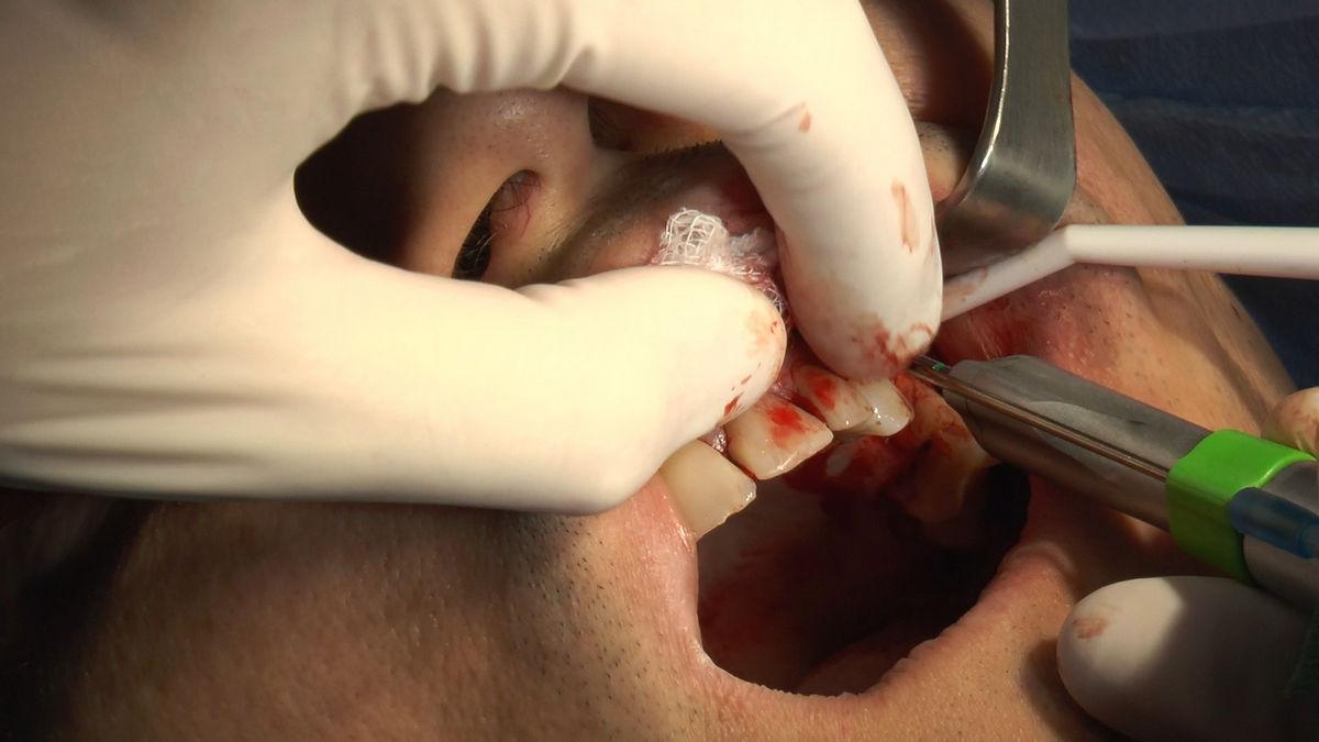 practiculum-implantologii-svb-s8-p3-192