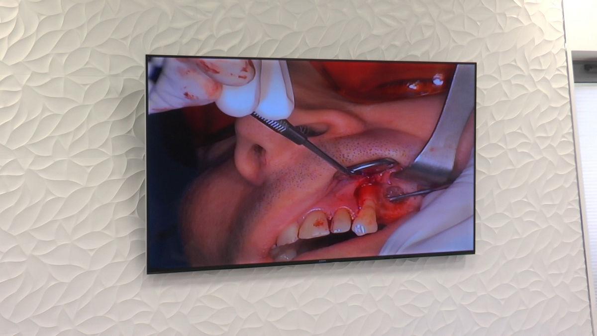 practiculum-implantologii-svb-s8-p3-214