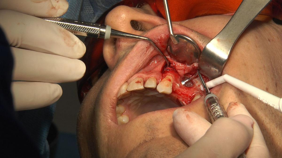 practiculum-implantologii-svb-s8-p3-218